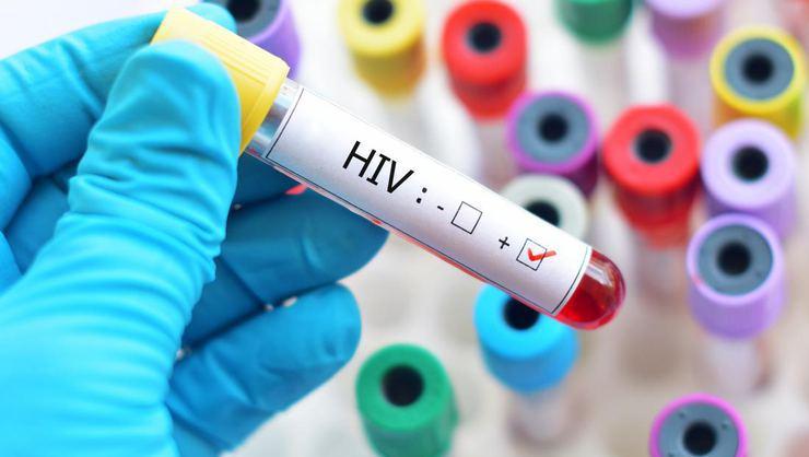 Hıv Fobisi AIDS korkusu nedir?